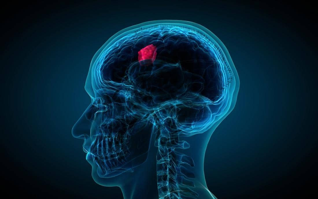Delivering Immunotherapy Directly To Brain Tumors