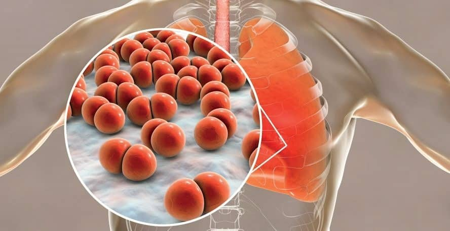 Metropolis Healthcare Launches Lower Respiratory Tract Infection Pneumonia Panel
