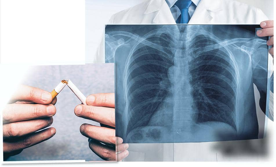IT'S MAGIC! CIGARETTE QUITTERS' LUNGS CAN EVICT CANCER CELLS!