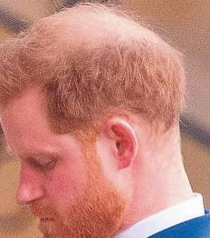 HARRY'S HAIR- LOSS HORROR
