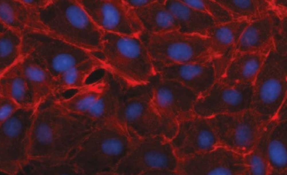 Vaccine Production Via Mammalian Cell Culture Systems