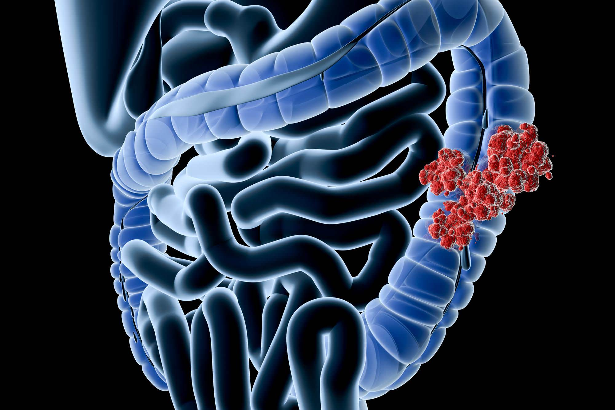 Colon Cancer Its Treatment By Homeopathy